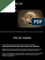 9.3 Carcinoma de Mama en RM.