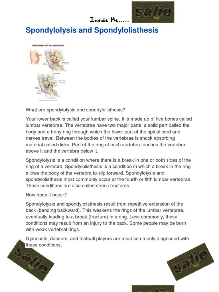 Spondylolisthesis And Plifpdf Vertebral Column Vertebra