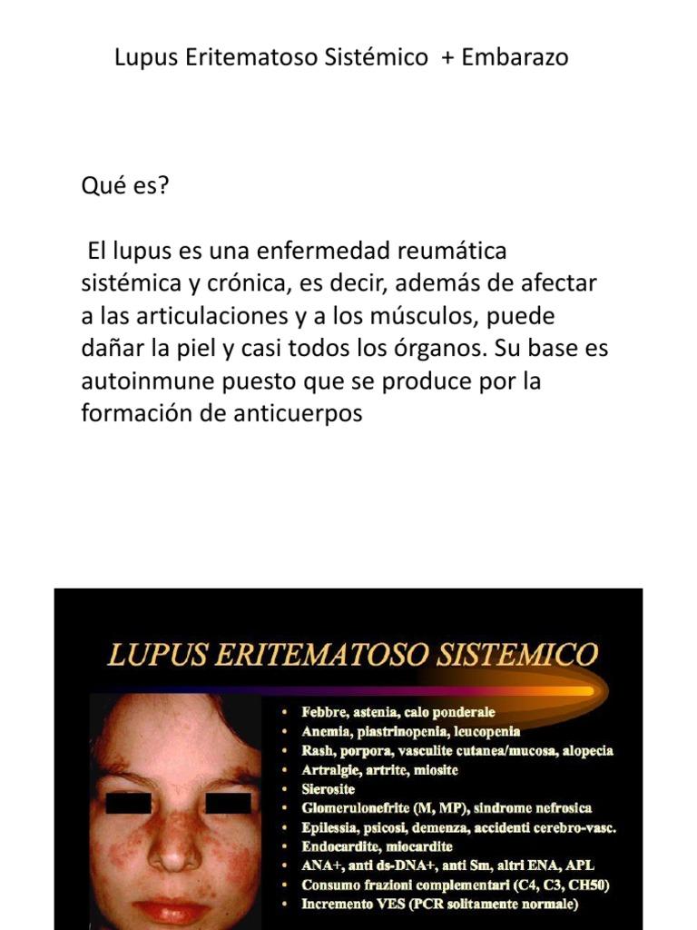 artralgie lupus)