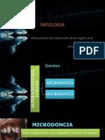 Alteraciones Del Desarrollo de La Region Oral PATOLOGIA1