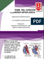 Corazon Hipoplasico