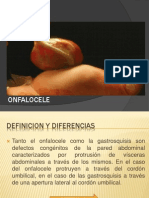 Onfalocele 12 de Junio Seminario Embriologia