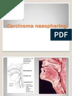 Carcinoma Nasopharinx