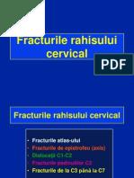 Fracturi cervicale