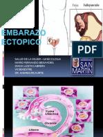 embarazoectopico-130514205509-phpapp02