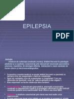 Epilepsia Dan