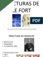 Fx de Maxilar