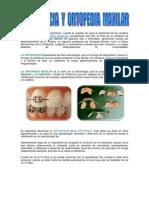 Diferencia Entre Ortodoncia y Ortopedia Maxilar