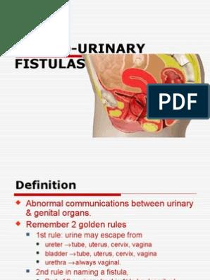 21) Genito-urinary Fistula | Vagina | Urinary Bladder