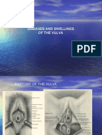 (22) Diseases of the Vulva and Vagina