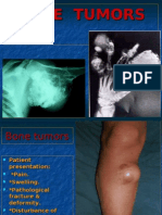 Bone Tumors.www.1aim.net