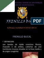 FRENILLO BUCAL