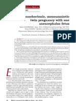 anencephaly 3