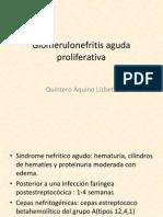 Glomerulonefritis aguda proliferativa