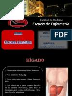 Cirrosis Hepatica Expo