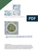 Chilomastix mesnili kista