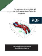 Procesamiento Digital de Imágenes en Matlab