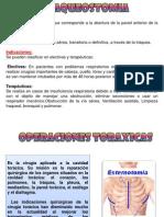 TRAQUEOSTOMIA-OPERACIONES TORACICAS