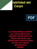 Inestabilidad Del Carpo