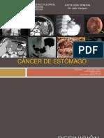 Cancer de Estomago Grupo 4