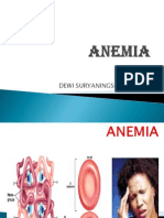 Anemia Dewi