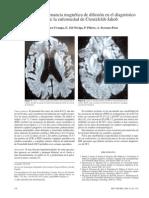 Secuencias de Rm de Difusion en El Diagnostico Precoz de La Enfermedad de Creutzfeldt Jakob