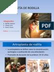 ARTROPLASTÍA DE RODILLA