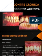 PERIODONTITIS CRÓNICA Y AGRESIVA