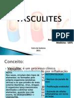 VASCULITES apresentação