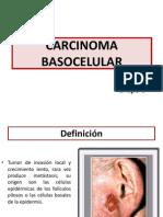 Carcinoma Basocelular FIN