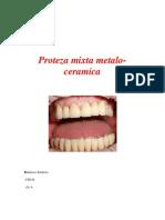 96741408 Proteza Mixta Metalo Ceramica