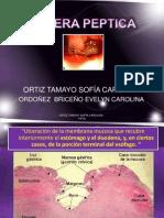 Expo Ulcera Peptica