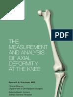Axial Deformity