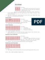 Aritmia EKG