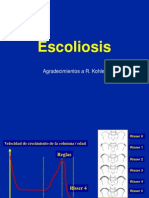 escoliosis-111026212959-phpapp01