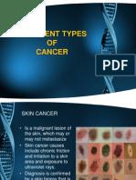 Nsg Management of Cancer
