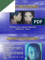 Hipertiroidismo en Pediatria
