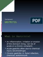 Stomach - Gastritis