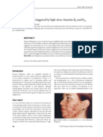 Rosacea fulminans triggered by high-dose vitamins B6 and B12