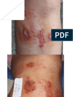 Invasive Systemic Staph Healed Without Antibiotics