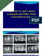 Class III, IV, V Direct Composite (2)