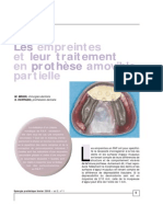 Les empreintes et leur traitement en prothèse amovible partielle Clinique Laboratoire