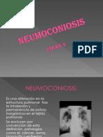 NEUMOCONIOSIS diapositiva ESTEEEEEEEEEEEEEEE