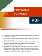 Carcinoma Pulmonar.