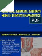 Hernia 3