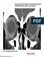 Radiographics 2008 Oct 28(6) 1729-39, .ppt