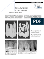 MB2 Canal Systems in Maxillary First Mollars