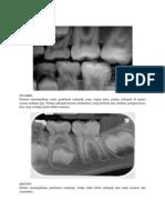 Tugas Responsi Radiology