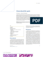 Artículo - Glomerulonefritis Aguda