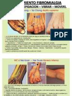 Tratamiento de Fibromialgia